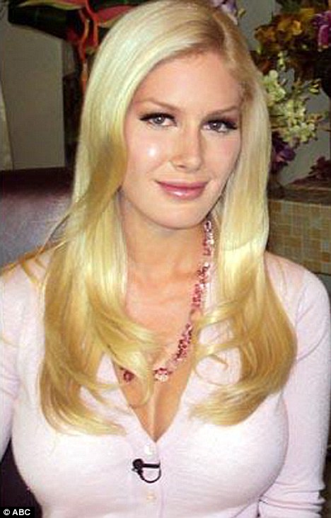 heidi montag surgery scars. Heidi Montag Left With