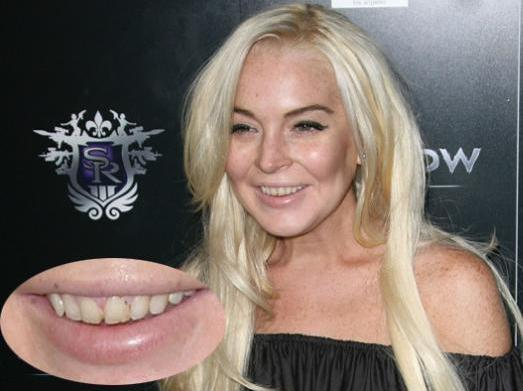 Is linsay lohan really a lesbian